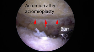 In the same patient, the tip of the acromion was removed by a burr under arthroscopy, treating the sub-acromial impingement