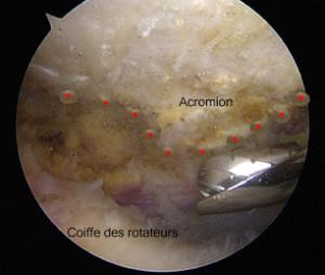 Le conflit sous-acromial est  une irritation des tendons de la coiffe des rotateurs entre l'acromion en haut et la tête humérale (non visible sur cette image)  au-dessous.  Sur cette vue endoscopique le bord de l'acromion est  marqué en pointillé. La pointe de l'acromion est assez développée et agressive contre la face superficielle de la coiffe.