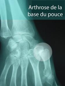Arthrose-base-pouce-radiographie