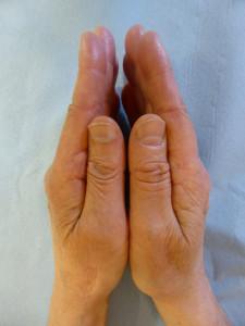 Une prothèse totale a été mise du côté gauche. Cette prothèse a permis de redonner la même longueur que l'autre pouce.