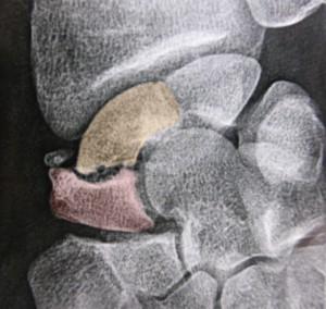 Radiographie d'une pseudarthrose du scaphoïde. Le pôle proximal (en jaune) est séparé du pôle distal (en rose) par une fracture qui n'a pas consolidé.