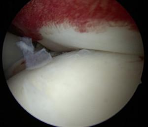 Vue intra articulaire : la coiffe est bien appliquée sur l'humerus, au ras de la surface articulaire. La réparation est étanche.