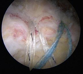 Vue de la réparation par voie sous acromiale