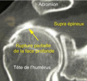 Le produit blanc a été injecté dans l'articulation. L'arthroscanner montre ici une rupture partielle étendue de la face profonde de la coiffe.