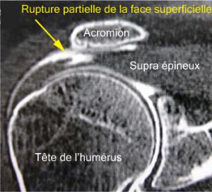 Le produit blanc a été injecté dans l'articulation mais est passé dans l'espace sous acromial par une perforation de la coiffe. L'arthroscanner montre ici une rupture partielle étendue de la face superficielle de la coiffe.
