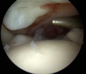 Vue intra articulaire : le mandrin métallique apparaît dans l'articulation à travers la rupture