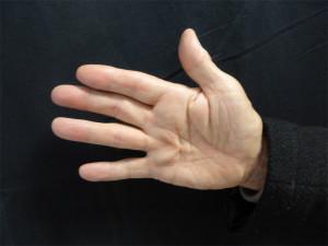 Maladie de Dupuytren débutante. Il n'y a pas de rétraction du doigt en flexion. Il n'y a pas d'indication opératoire