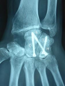 Arthrodèse des 4 os internes: Le scaphoïde a été enlevé. Les autres os du carpe sont fusionnés avec les vis.
