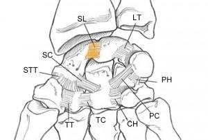 Schema des ligaments interosseux du poignet. Le ligament coloré est le ligament scapholunaire.