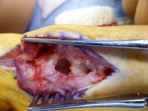 Volumineuse perte de substance osseuse dans le scaphoïde