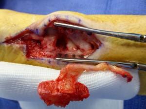 Un volumineux greffon a été prélevé avec son artère et sa veine nourricière au niveau du genou.