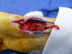 Le greffon est retaillé, encastré et fixé dans le scaphoïde par une vis.