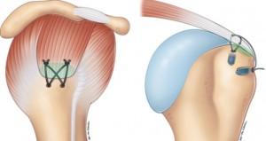 Les tendons de la coiffe sont refixés sur une surface  de  cicatrisation (en vert) entre le tendon et l'os.