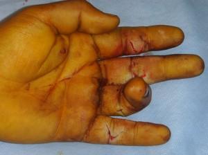 Les deux tendons fléchisseurs de l' index, du majeur et de l'auriculaire sont entièrement coupés.