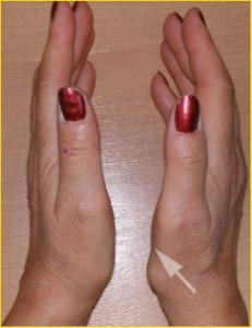 La flèche indique l'atrophie de certains muscles du pouce secondaire à un canal carpien évolué. A ce stade, la paralysie est rarement réversible.