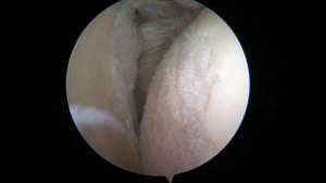 Arthrose de la tête humérale dont le cartilage n'est plus lisse et régulier.