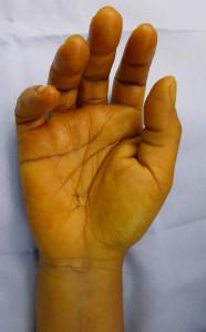 Cette photo montre les deux cicatrices juste après libération du canal carpien par voie endoscopique.