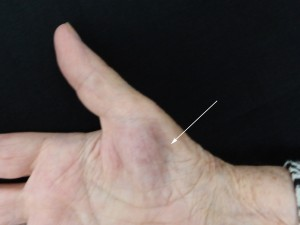 Le creux montré par la flèche est du à l'atrophie des muscles du pouce