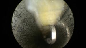 Vue endoscopique du canal carpien pendant l'intervention. On voit le ligament en haut (en blanc) et les parois de la canule métallique de chaque côté (en gris). Un instrument a été introduit dans le canal carpien et permet de palper le ligament.