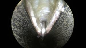 Ouverture du canal carpien par voie endoscopique. La canule métallique a été introduite à l'intérieur du canal. Le ligament est ouvert, les deux berges s'écartent et le nerf (non visible sur cette image) est libéré