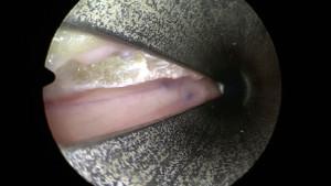 On voit ici une berge du ligament qui vient d'être ouvert. Juste en-dessous, le nerf médian qui vient d'être libéré. L'aspect violacé du nerf traduit une compression qui était très importante.