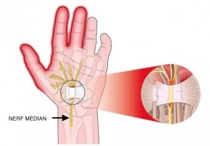 Compression du nerf médian dans le canal carpien
