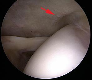 Repérage sous arthroscopie d'une calcification. La flèche rouge indique une calcification est à peine visible à la face profonde du tendon.