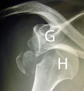 Sur cette radiographie de face d'une épaule droite l'humérus (H) n'est plus en face de la glène de l'omoplate (G).