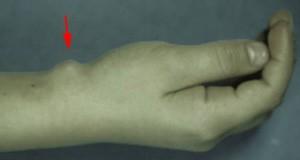 """Kyste synovial palmaire du poignet développé dans la """"gouttière du pouls"""""""