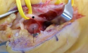 Ce nerf ulnaire était comprimé au poignet par un kyste synovial dans le canal de Guyon