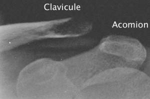 Radiographie de face d'une luxation acromio-claviculaire stade 3