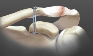 Ce schema montre le ligament artificiel placé sous arthroscopie. Le ligament, monté comme un palan, prend appui sur deux petites plaques métalliques.