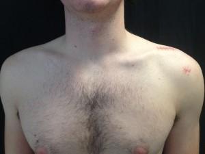 Le même patient 6 semaines après l'intervention. Sous arthroscopie, les cicatrices sont minimes.