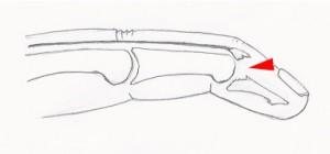 Dans ce cas, le tendon a arraché son insertion osseuse. Les surfaces articulaires ne sont plus en face l'une de l'autre.