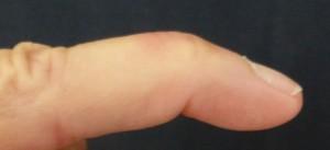 Aspect typique de doigt en maillet ou mallet finger.