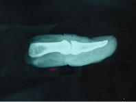 Radiographie de profil du fragment amputé