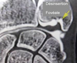 Désinsertion du TFCC au niveau de la fovéa. Le produit de contraste passe entre le TFCC et son insertion osseuse.