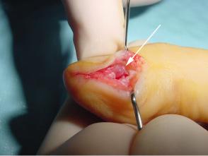 Excision d'une volumineuse tumeur glomique sous unguéale du pouce