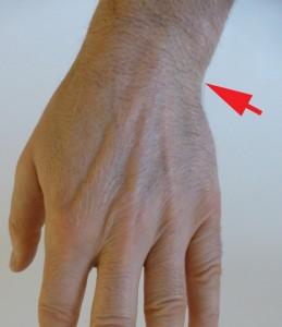 Les douleurs dues aux lésions du TFCC se situent du côté ulnaire du poignet