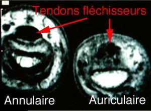 Sur cette IRM: Le tendon de l'annulaire  est normal car homogène et dense. Le tendon de l'auriculaire est hétérogène et cicatriciel.