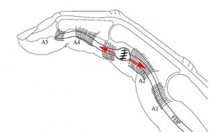 Après élargissement des poulies, la zone de suture coulisse à l'intérieur des poulies élargies.