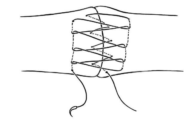 r u00e9paration par suture des tendons extenseurs