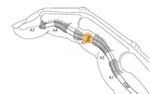 La réparation des tendons entraîne toujours un épaississement du tendon qui passe difficilement sous les poulies.