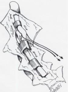 La traction sur le fil libère le tendon profond sous la dernière poulie