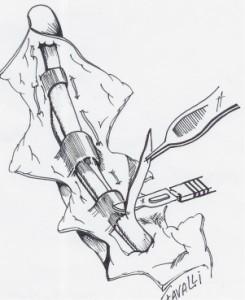 Une bandelette du fléchisseur superficiel est enlevée pour simplifier le croisement des deux tendons