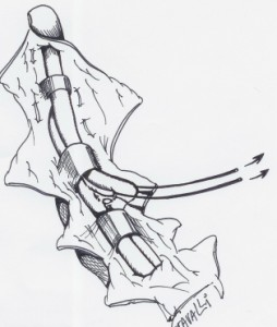Le tendon profond est libéré jusqu'à la poulie suivante