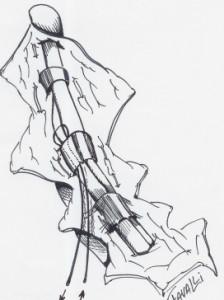 Le fil est passé autour du tendon superficiel