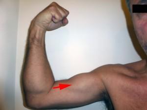 """Le biceps est remonté. C'est ce qu'on appelle le """"signe de Popeye inversé"""""""