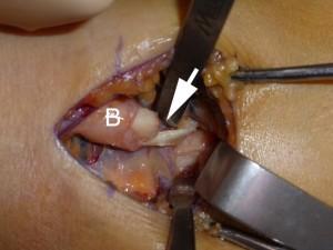 Le dernier centimètre du tendon (B) est rompu à 80%