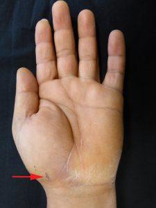 La vis est introduite par une toute petite incision. La position de la vis est contrôlée par des radiographies pendant l'intervention.